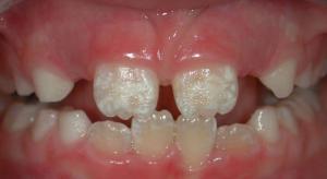 dientes-fluorosis
