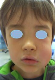 celulitis 1 ojos tapados