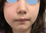 celulitis 2 ojos tapados